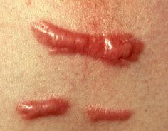 red itchy keloid scars