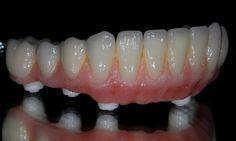 zirconia hybrid dentures  www.lovaldental.com Los Algodones Baja California lovaldental@hotmail.com (928)377-4565 Yuma Az Phone