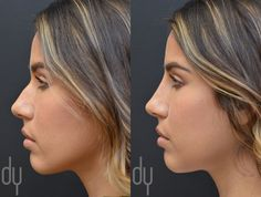 Beverly Hills Rhinoplasty Specialist Dr. Donald Yoo performed a Nonsurgical Rhinoplasty with Restylane®. The most common fillers used to perform non-surgical rhinoplasty are Radiesse (calcium hydroxyapatite microspheres), Restylane and Perlane (hyaluronic acids). They are an attractive option for a subset of patients, because it can produce pretty significant changes without the surgery. #fillers #nosejob #restylane #nonsurgical #rhinoplasty #drdonyoo