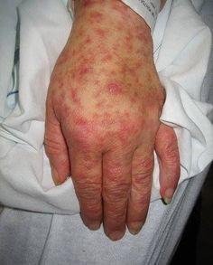 Chikungunya, la enfermedad del año: Relato de un afectado