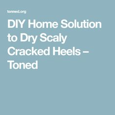 DIY Home Solution to Dry Scaly Cracked Heels – Toned