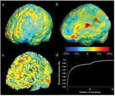 Brain growth patterns in typical children