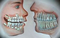 Mixed dentition and adult teeth