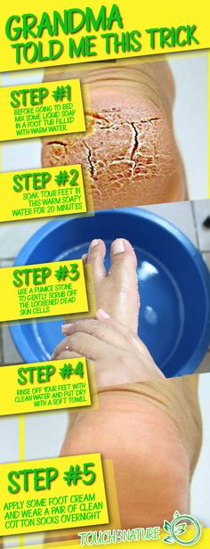 Grandma Told Me This Trick. It Healed My Cracked Heels In Just 1 Night – Touch Of The Nature