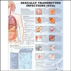Embarrassing bodies sexually transmitted infections chlamydia
