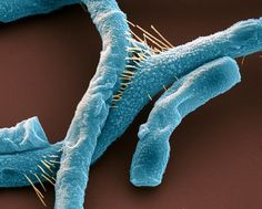 """Scanning electron micrograph of """"Bacillus anthraces,"""" commonly known as anthrax. """"These rod-shaped, Gram-positive, spore-forming bacteria can infect the skin (cutaneous anthrax), causing raised itchy lesions, the lungs (pulmonary anthrax), which is fatal unless treated quickly, and the digestive system (gastrointestinal anthrax), causing vomiting of blood and severe diarrhoea. All forms can be fatal if left untreated."""""""