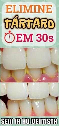 Como se Livrar do Tártaro em Menos de 30 Segundos em Casa de forma simples e natural. Além disso, o Tártaro pode ser removido com bastante facilidade, sem procedimentos cirúrgicos e sem ir ao dentista. #dicas #truques #receitas #caseiro #saude #dentes #tartaro #receitacaseira #receitacaseiraparacabarcomtartaro #acabecomtartaronaturalmente #eliminetartaro #eliminetartaroemcasa
