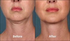 Anyone can have extra fat around the neck and face area because of fatty deposits due to general obesity, aging, or water retention. If you want the fastest solution, you can visit a cosmetic surgeon to have a liposuction. However, if this is not something you want or can afford, there are natural and less…