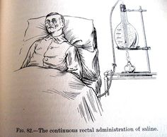 """The continuous rectal administration of saline.""   Saline being heated by a flame."