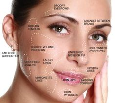 What is a Liquid Facelift? A liquid facelift is a non-surgical procedure, given with a Master Injector Technique, that combines Botox and Filler to restore lost volume, give a natural cheek lift, a… Cheek Fillers, Botox Fillers, Dermal Fillers, Fillers For Face, Chin Filler, Hyaluron Filler, Liquid Facelift, Facial Anatomy, Nasolabial Folds