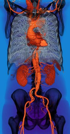 Aortic Dissection Stanford Type B (sm) Aortic Dissection, Human Anatomy Art, Craniosacral Therapy, Medical Anatomy, Medical Art, Arte Horror, Ap Art, Anatomy And Physiology, Oeuvre D'art