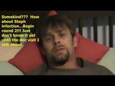 Sinus Surgery Journal Days 5 - 8
