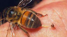 Picaduras de abejas para tratar enfermedades