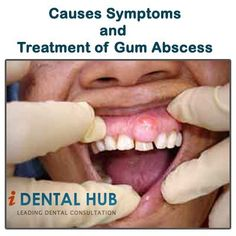 If gum abscess is restricted to gums, then it is known as gingival abscess and when the deeper supporting periodontal structures are involved, then it is known as periodontal abscess. Periodontal abscess is commonly involved with deep pockets, furcation and bone defects. Immediate treatment si required for gum abscess. Read more info @ Identalhub
