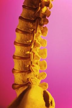 How to Reverse Scoliosis With Exercise