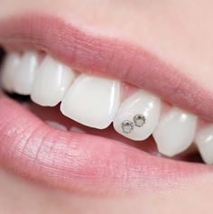 Heal cavities and restore tooth enamel naturally. Remineralize teeth & regrow tooth enamel with our Easy Cavity Healing Protocol! Heal Cavities, How To Prevent Cavities, Dental Health, Oral Health, Cavity Healing, Medical Wellness, Best Whitening Toothpaste, Dental Jewelry, Home Remedies