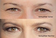 Schlupflider Vorher-Nachher Vergleich Mascara can be a cosmetic commonly utilized boost the eyelashe Gold Eye Makeup, Makeup For Brown Eyes, Smokey Eye Makeup, How To Make Brown, Eye Make Up, Drooping Eyelids, Natural Wedding Makeup, Brown Eyeshadow, Matte Eyeshadow