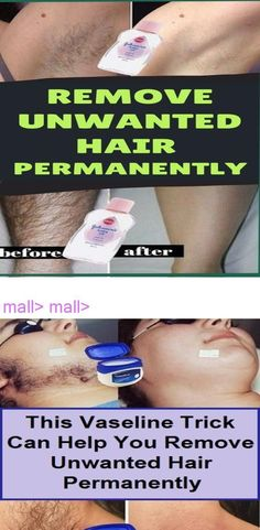 mall> mall> #IngrownHairRemoval
