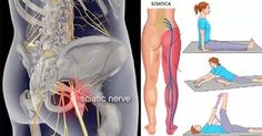 Best food for sciatica how to ease sciatic nerve pain in back,is it sciatic nerve pain neck pain,sciatic nerve anatomy sciatic nerve disease. How To Relieve Sciatica, Sciatica Symptoms, Sciatica Pain Relief, Sciatic Pain, Sciatic Nerve, Nerve Pain, Sciatica Pain Treatment, Sciatica Massage, Arthritis