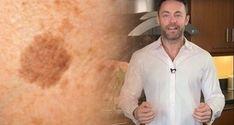Un dermatologue célèbre révèle comment enlever les taches brunes sur le visage et la peau avec cette astuce simple