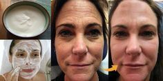 Thousands of Women Are Using This Homemade Cream to Rejuvenate Their Facial Skin and Get Rid of Wrinkles! You Will Look 10 Years Younger Overnight (RECIPE) Lemon Juice Face, Lemon Face, Wrinkle Remedies, Baking Soda And Lemon, Les Rides, Face Skin Care, Turkish Recipes, E 10, Tips Belleza