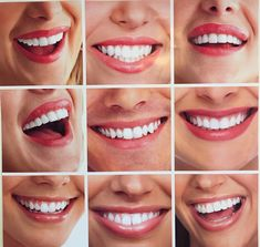 Want to change the appearance of one or more teeth veneers are thin win a custom whitening kit with solutioingenieria Image collections