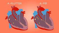 Cardiac Nursing, Pharmacology Nursing, Heart Ablation, Atrial Flutter, Brain Facts, Critical Care Nursing, Nuclear Medicine, Nursing School Notes, Heart Care