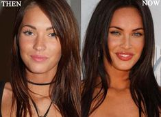 Megan Fox Plastic Surgery Photo Before and After - http://www.celeb-surgery.com/megan-fox-plastic-surgery-photo-before-and-after/?Pinterest