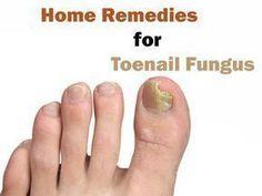 Remedies For Toenail Fungus How to get rid of toe nail fungus? Best home remedies for toenail fungus.What causes toenail fungus? Vicks vaporub, vinegar, listerine for toenail infection What Causes Toenail Fungus, Toenail Fungus Remedies, Toenail Fungus Treatment, Vicks Vaporub, Listerine, Dry Skin Remedies, Top, Beauty Tutorials, Mushrooms