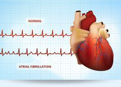 FOW 24 NEWS: Important Things To Know About Atrial Fibrillation...