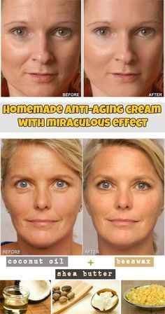 Homemade anti-aging cream - WomenIdeas.net – 1/4 cup almond oil – 2 tbsp coconut oil – 2 tablespoons beeswax – 1 teaspoon of jojoba oil – 1 tablespoon shea butter – sandalwood essential oil