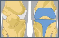 Total and partial knee replacement implants