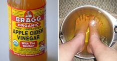 Apple Cider Vinegar Remedies Soaking Feet in Apple Cider Vinegar for 15 Minutes Has Incredible Benefits - For centuries, ACV has been a remedy for many! From soaking feet in apple cider vinegar to curing dandruff, here's the best way to use it. Apple Cider Vinegar Cellulite, Apple Cider Vinegar Remedies, Unfiltered Apple Cider Vinegar, Home Remedies, Natural Remedies, Rls Remedies, Foot Soak Vinegar, Vinegar With The Mother, Restless Leg Syndrome