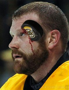 Tim Thomas of the Boston Bruins feels no pain, not even when a puck hits him in the face.