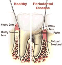 Periodontal (gum) disease describes bacterial growth and toxins that gradually destroy tissue supporting the teeth. Gingivitis and periodontitis are the two main stages of gum disease. Gingivitis involves inflammation of the gums from plaque. It can be treated and reversed with professional cleanings, daily brushing and flossing to remove plaque accumulation. http://prestigedentalcenters.com/prestige-dental-services/family-general-dentistry/dental-gum-disease-treatment