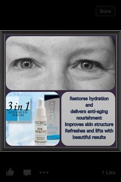 Skincerity used on one side of face (not sure of usage time). To order your first bottle or to become a distributor, visit www.biz or call Side Of Face, Become A Distributor, Skin Structure, Marketing Opportunities, National Institutes Of Health, Anti Aging Serum, Younger Looking Skin, Stretch Marks, Skin Treatments