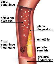 Suplemento de cálcio pode entupir as artérias