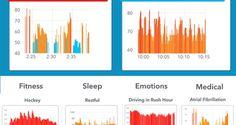 L'Apple Watch, con l'aiuto dell'intelligenza artificiale, potrebbe essere in grado di rilevare apnee...