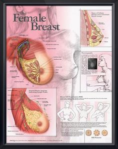 Female Breast anatomy poster shows surface anatomy and major muscles, ligaments, nerves, arteries, veins, ducts, lymph nodes.  ObGyn chart for doctors and nurses. Mature content.