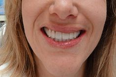 """Smile Gallery Orthodontics Before After Veneers Before After """"We have been going to Drs. Tesene, Maurer & Maurer for 19 years. Dentists, Orthodontics, Iowa, Dental, Smile, Gallery, Roof Rack, Teeth, Dentist Clinic"""