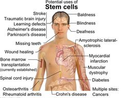 Benefits of stem cell research.