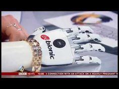 BeBionic - bàn tay sinh học cho phép người khuyết tật vận động dễ dàng và tự nhiên hơn First UK user of bebionic small on BBC2's Victoria Derbyshire Show