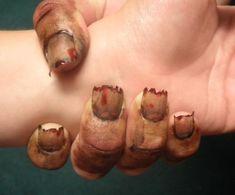 Zombie Nail Art...   WTF? Hell no.
