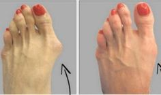 A bunion (Hallux Valgus) is a bony bump that forms on the joint at the base of your big toe. A bunion forms when your big toe pushes against your next toe, forcing the joint of your big toe to get Herbal Remedies, Health Remedies, Home Remedies, Natural Cures, Natural Healing, Natural Life, Natural Foods, Natural Diuretic, Natural Energy