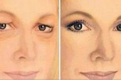 How to Get Rid of Drooping Eyelids with This Natural Remedy! Drooping Eyelids, Droopy Eyes, Beauty Care, Beauty Skin, Health And Beauty, Face Skin, Face And Body, Beauty Secrets, Beauty Hacks