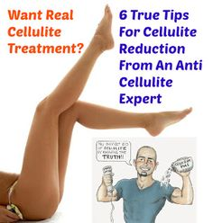 Remove Cellulite And Carve The Body Of Your Dreams: Want Real Cellulite Treatment? 6 True Tips For Cellulite Reduction From An Anti Cellulit...