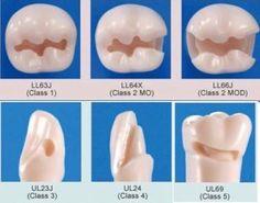 All Class Restorations Photo via @vigangoga follow him for more pics Tag your friends #teeth#tooth#toothless#extraction#cirugiabucal#oralsurgery#dental#dentist#dentistry#dentalhygiene#dentalassistant#dentalschool#dentalstudent#dentalhygiene#implant#implants#odonto#odontogram#odontologo#odontolove#odontología#odontologia#odontogram#odontoporamor#estomatología#prosthesis#prosthodontics#restorative#impression#smile