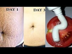 In 3 Days Get Rid Of Stretch Marks Super fast and Permanently, How To Get Rid of Stretch Marks Fast Stretch Mark Remedies, Stretch Mark Removal, Stretch Mark Tattoo, Stretch Marks On Stomach, How To Get Rid Of Stretch Marks, Natural Beauty Remedies, Beauty Tips For Skin, Skin Care Remedies, Tips Belleza
