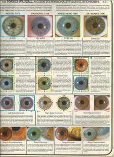 Iridology--Rayid Model