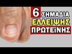 6 Σημάδια Έλλειψης Πρωτεϊνης, Τα Οποία ΔΕΝ Πρέπει Να Αγνοήσετε! - YouTube Youtube, Youtubers, Youtube Movies